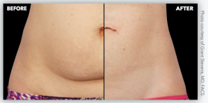 stomach before-after | CoolSculpting before and after photos -The Center for Aesthetics, CFA